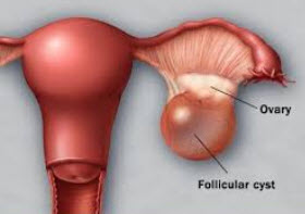Ovarian Cysts Have Five Common Types Do You Know What