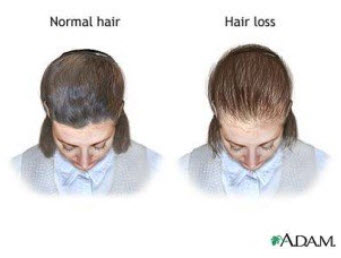 Female Hair Loss and PCOS: Find Out What's Causing Your ...