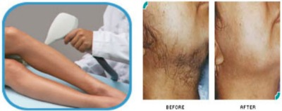 Intense Pulsed Light Therapy for Hirsutism