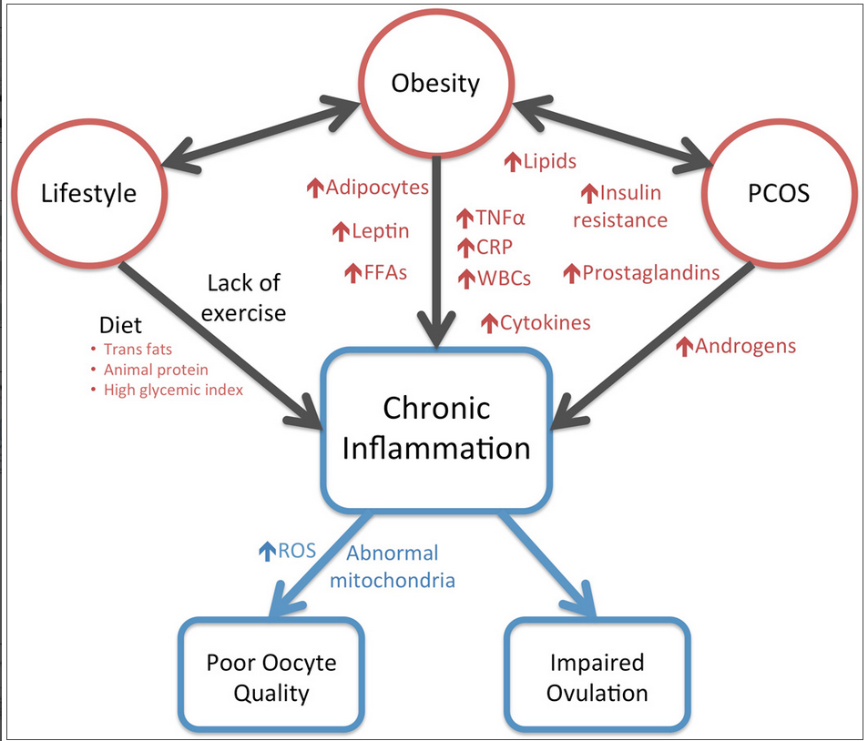 Weight Problems in PCOS Made Worse by Inflammation