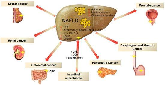 burden of non alcoholic fatty liver disease in australia pdf